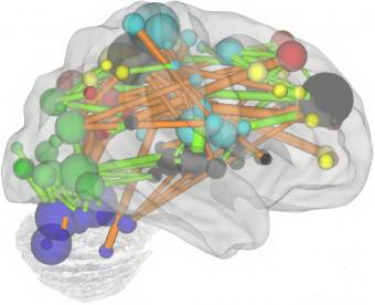 20100916023508-desarrollo-cerebro-regiones-clave.jpg