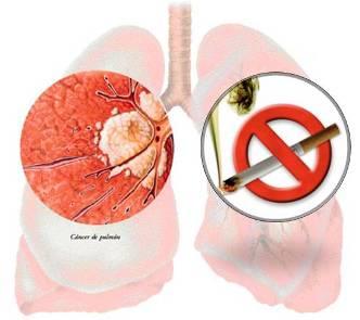 20110910082721-vacuna-contra-el-cancer.jpg