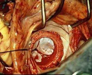 20111016055330-3.cirugia-cardiaca.jpg