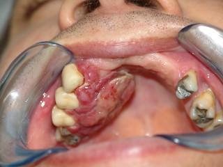 20111113052252-3.cancer-de-boca.jpg