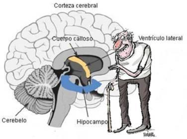 20130210104934-5.-vejez-deterioro-cerebro.jpg