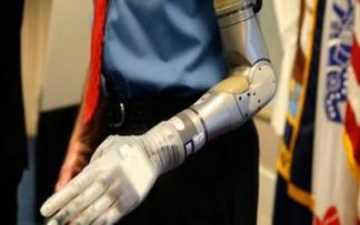 20140511153457-protesis.jpg
