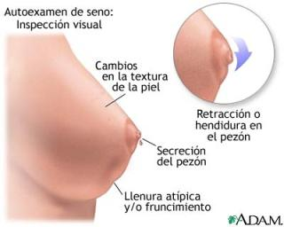 20150117035958-cancer-de-mama-autoexamen2.jpg