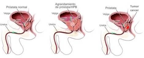 20150728130634-hiperplasia-prostatica-cuba-medicamento.jpg