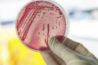 20160306124821-bacteria-2.jpg
