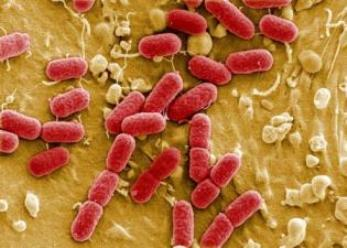 20170223115353-ue-alarmantes-superbacterias.jpg