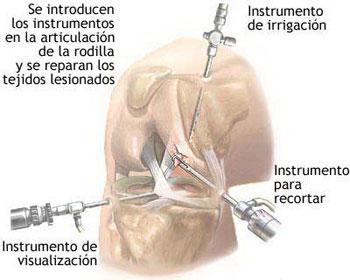 20100924165945-2.-artroscopia.jpg