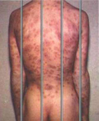 20101003083447-5.-prisionero-con-sifilis.jpg