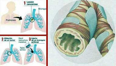 20110307064319-implante-de-bronquio.jpg.jpg