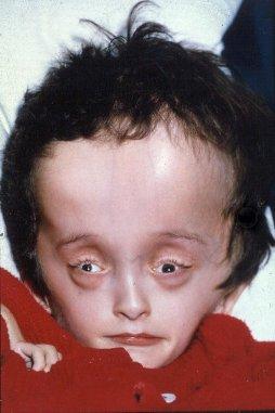 20110321015323-1.hidrocefalia.jpg.jpg