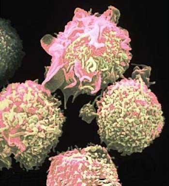 20110923015531-celulas-cancer.jpg