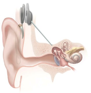 20111029130110-cochlear-implant.jpg