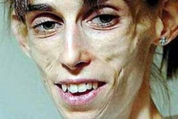 20120701000639-anorexia.jpg