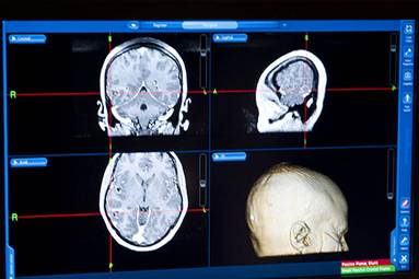 20121205135225-un-hospital-transmitio-via-redes-sociales-la-extraccion-de-un-tumor-cerebral-1.jpg