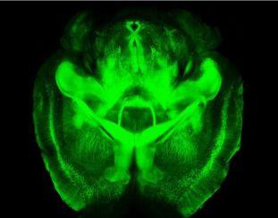 20130414061002-2.cerebro-transparente.jpg