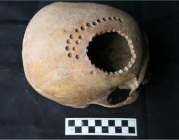 20140116141926-cirugia-craneal-en-el-peru-hace-casi-mil-anos.jpg
