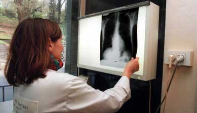 20140219033603-crean-pulmones-humanos.jpg