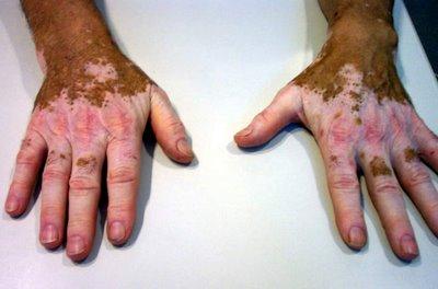 20150330131637-vitiligo.jpg