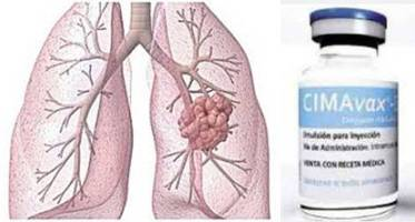 20150422122529-vacuna-cubana-cancer-de-pulmon.jpg