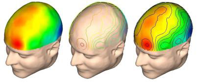 20170211190343-1-neuroimagenes12.jpg